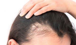 Quando devemos nos preocupar com a queda de cabelo?