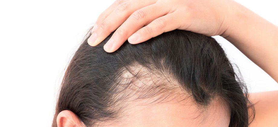 Imagem do post Quando devemos nos preocupar com a queda de cabelo?