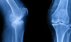 Em quais exames é possível identificar um quadro de osteoartrite?