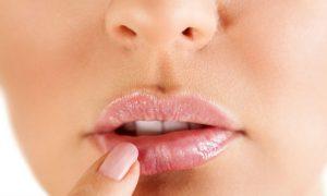 Tratamento contra herpes reduz crises de paulistana que sofria mensalmente com a doença