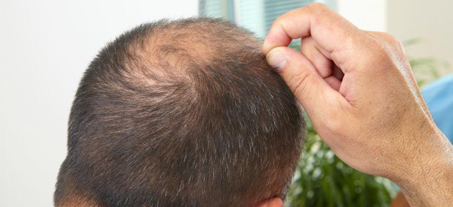 Abandonar o tratamento contra a calvície pode precipitar nova perda de cabelo?