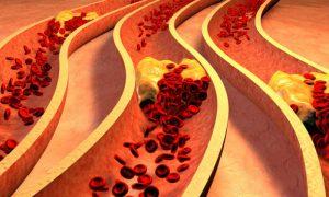 O que é aterosclerose? Quais são as causas do problema?