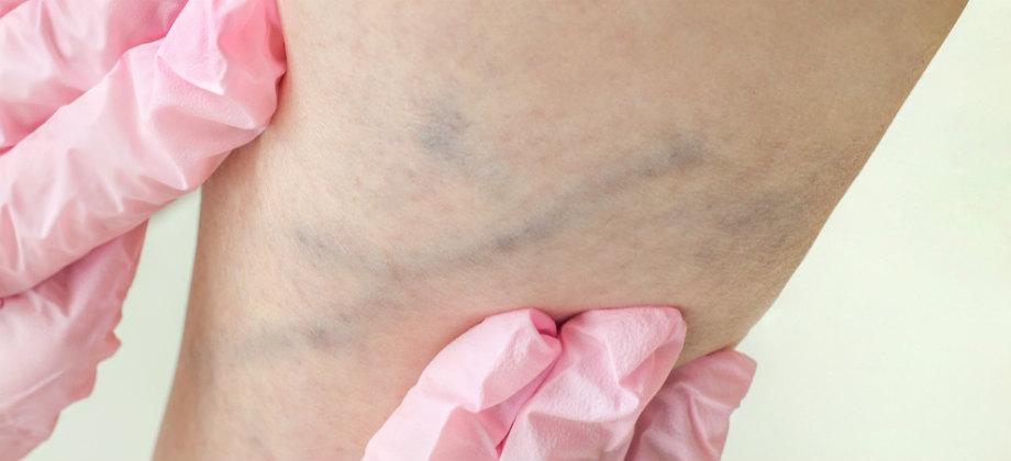Imagem do post O que é escleroterapia? Tratamento é realizado contra vasinhos nas pernas