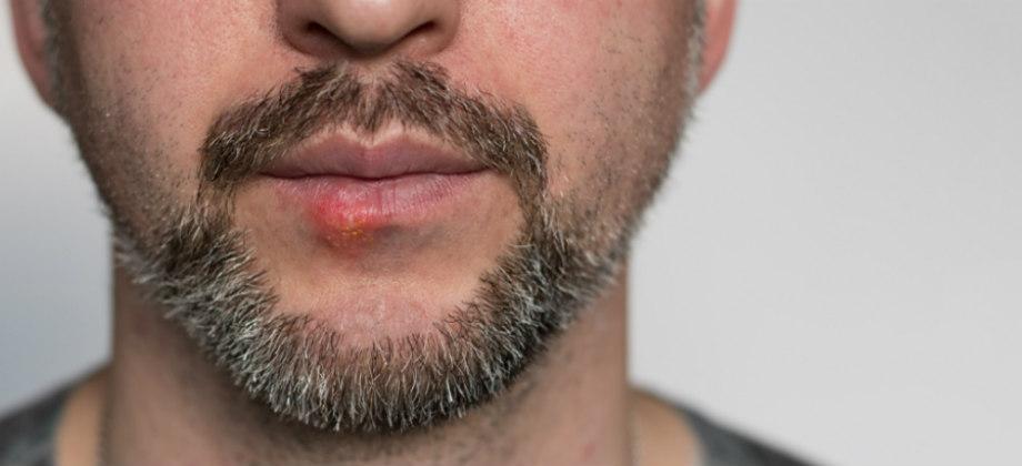 Sexo oral pode transmitir o vírus do herpes? Como se prevenir?