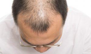 Quais alimentos previnem contra a queda de cabelo?