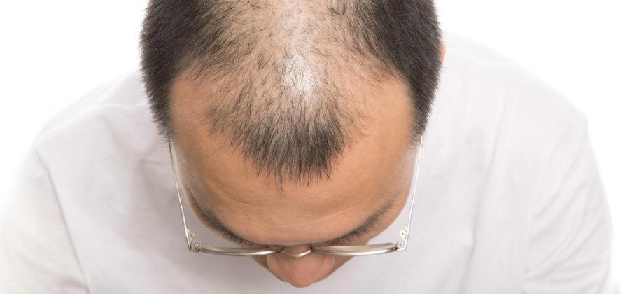 Imagem do post Queda de cabelo: é possível se prevenir da calvície?