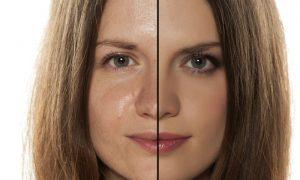 Qual é a diferença entre pele oleosa e pele brilhosa?