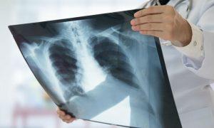 É possível reverter os danos aos pulmões causados pelo tabagismo?