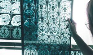 O que acontece no cérebro de um paciente com mal de Alzheimer?