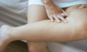 O uso de anticoncepcionais é um fator de risco para varizes?