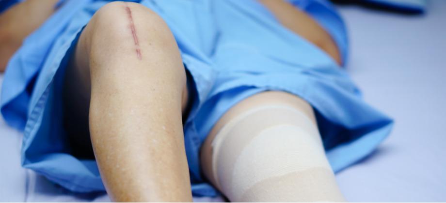 O que é artroplastia? Quando a cirurgia é necessária?