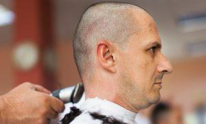 Cortar o cabelo durante o tratamento contra a calvície pode causar problemas?