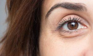 Existe alguma diferença entre olheiras e bolsas embaixo dos olhos?