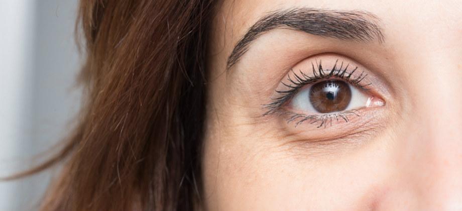 Imagem do post Existe alguma diferença entre olheiras e bolsas embaixo dos olhos?