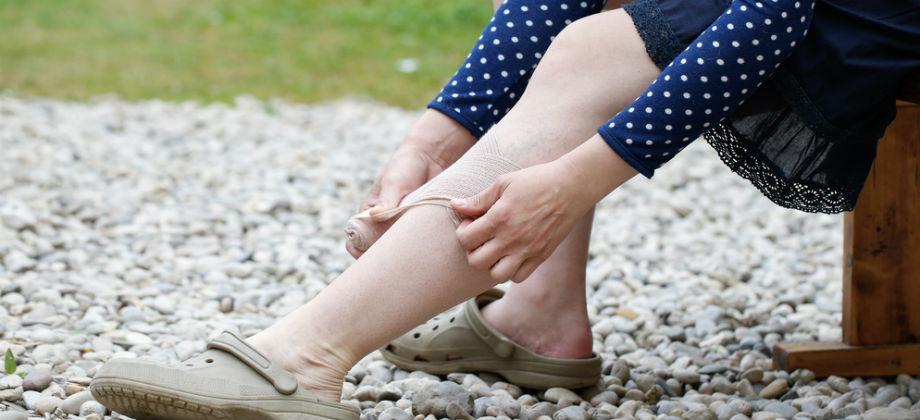 Imagem do post Medicamento contra osteoporose alivia fortes dores na perna de servidora pública