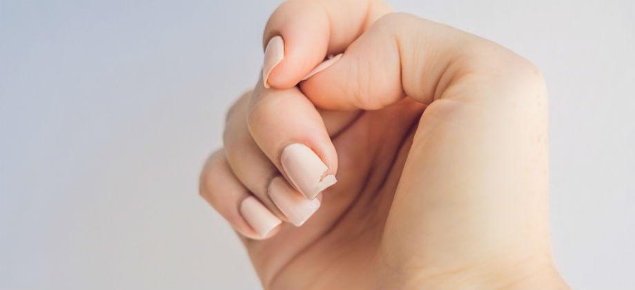 A síndrome das unhas frágeis pode atrapalhar a sua rotina?