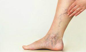 Varizes podem causar trombose?