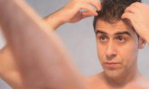 Passar muito gel no cabelo pode favorecer a calvície?