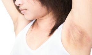 Quais são as principais causas para manchas nas axilas?