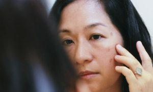 Melasma: saiba quais são as causas e o tratamento do problema