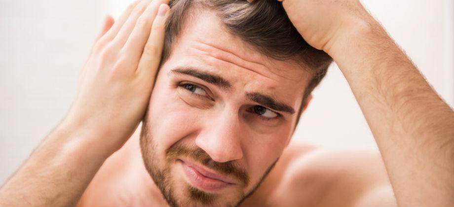 Calvície: oleosidade dos fios pode fazer o cabelo cair?