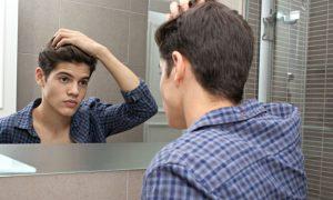 Os sinais da calvície podem aparecer antes dos 20 anos de idade?