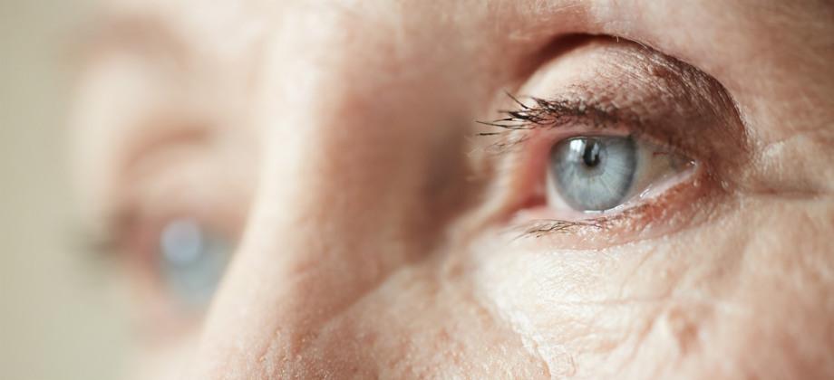 O diabetes pode atingir os olhos e causar catarata e glaucoma?
