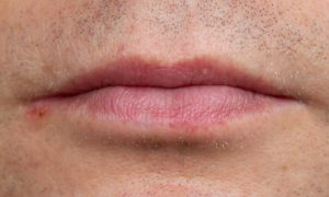 Por que a lisina pode prevenir o surgimento do herpes?
