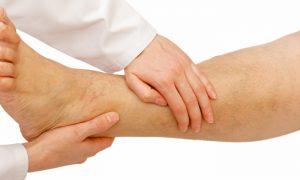 Inchaço nas pernas pode ser um sinal de varizes?