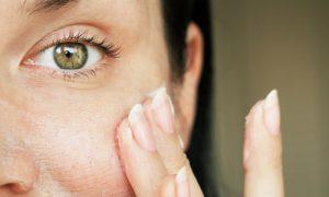 Existe diferença entre pele sensível e pele sensibilizada?