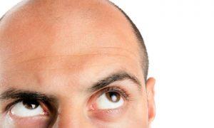 Transplante de cabelo traz riscos? Quais são as contraindicações?