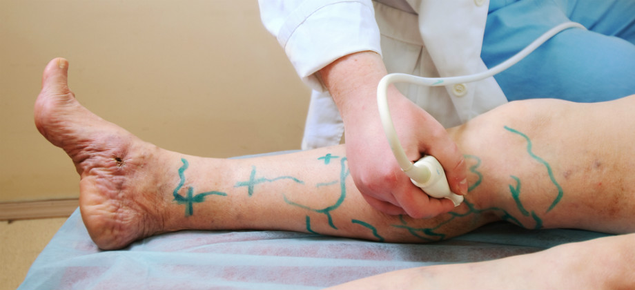 As varizes podem voltar mesmo após cirurgias?