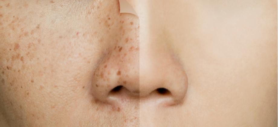 Quais são os principais tipos de manchas na pele?
