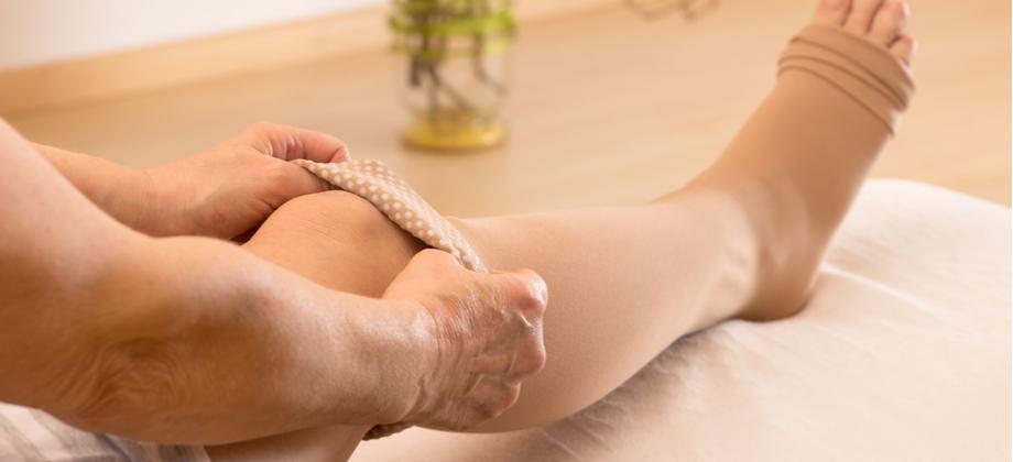 Como funcionam as meias especiais que auxiliam no tratamento de varizes?