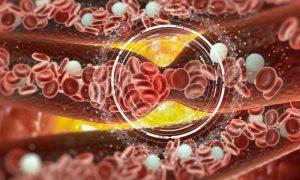 O que são coágulos sanguíneos? Por que eles são perigosos?