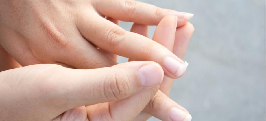 A síndrome de unhas frágeis pode causar a queda de uma unha inteira?