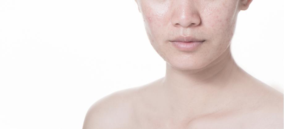 Acne: ter a pele oleosa aumenta as chances de desenvolver espinhas?