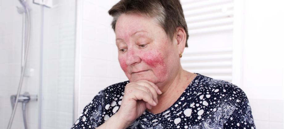 O que é rosácea? Saiba como um hidratante calmante pode auxiliar no tratamento!