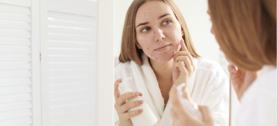 Por que a ação antibacteriana é importante em produtos voltados para o tratamento da acne?