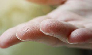 Quais são as principais causas da pele ressecada?