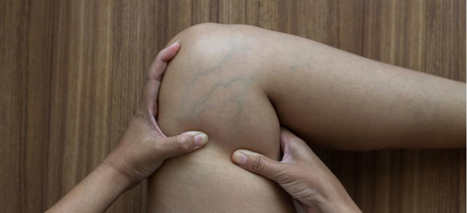As varizes podem aparecer em outras regiões do corpo além das pernas?