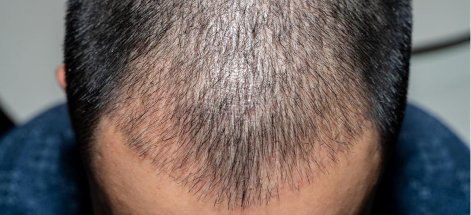 O tratamento da calvície deve ser feito por toda a vida?