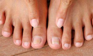 A síndrome das unhas frágeis pode ser resultado de uma má alimentação?