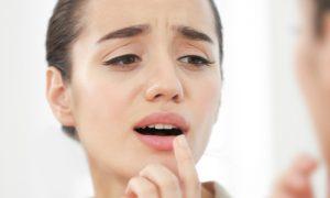 Em que partes do corpo o herpes pode se manifestar?