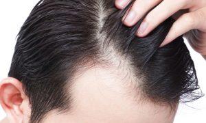 Usar muitos produtos cosméticos no cabelo pode favorecer a calvície?