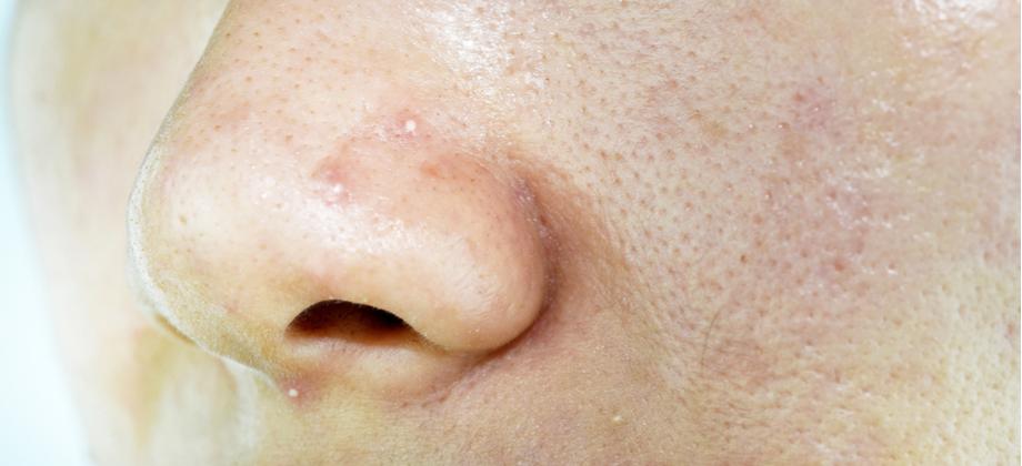 Por que a pele oleosa apresenta poros mais dilatados?