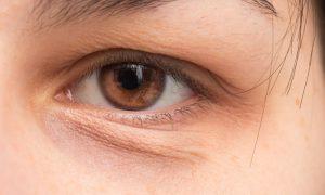Qual é o papel da circulação na formação de olheiras?