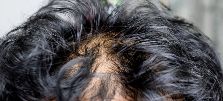 Por que o excesso de oleosidade no couro cabeludo contribui para a calvície?
