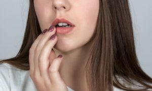 O que fazer quando você sentir os sintomas do herpes que precedem as feridas?