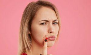 Herpes: Por que algumas pessoas tem várias crises e outras nunca manifestam a doença?